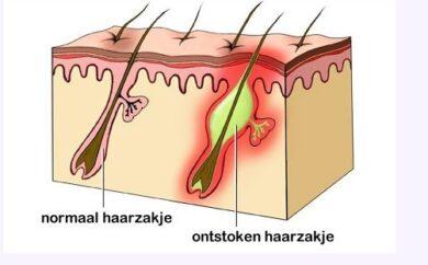 ontstoken-haarzakje